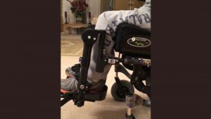 Can Dynamic Seating Be Used on any Wheelchair
