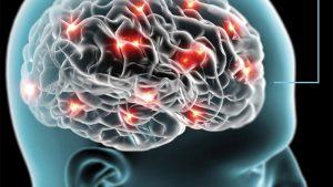 3D Illustration of Brain Activity