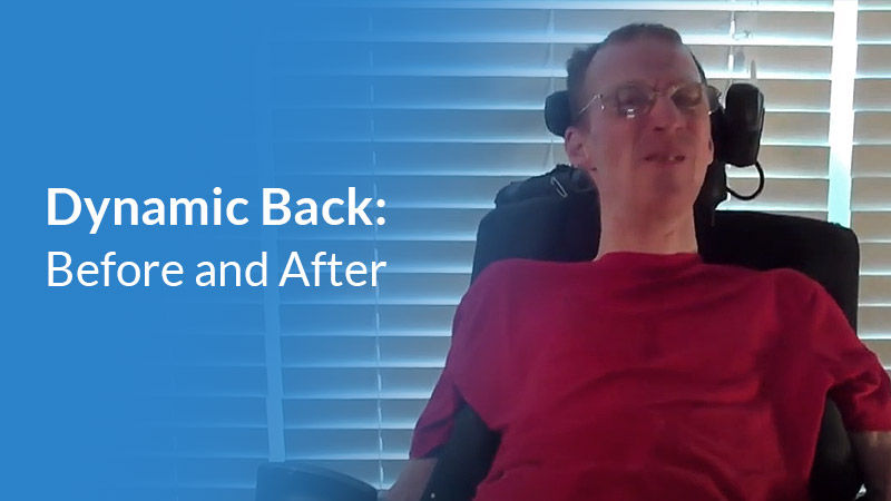 Carl before and after dynamic rocker back